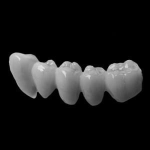 DentalBridge